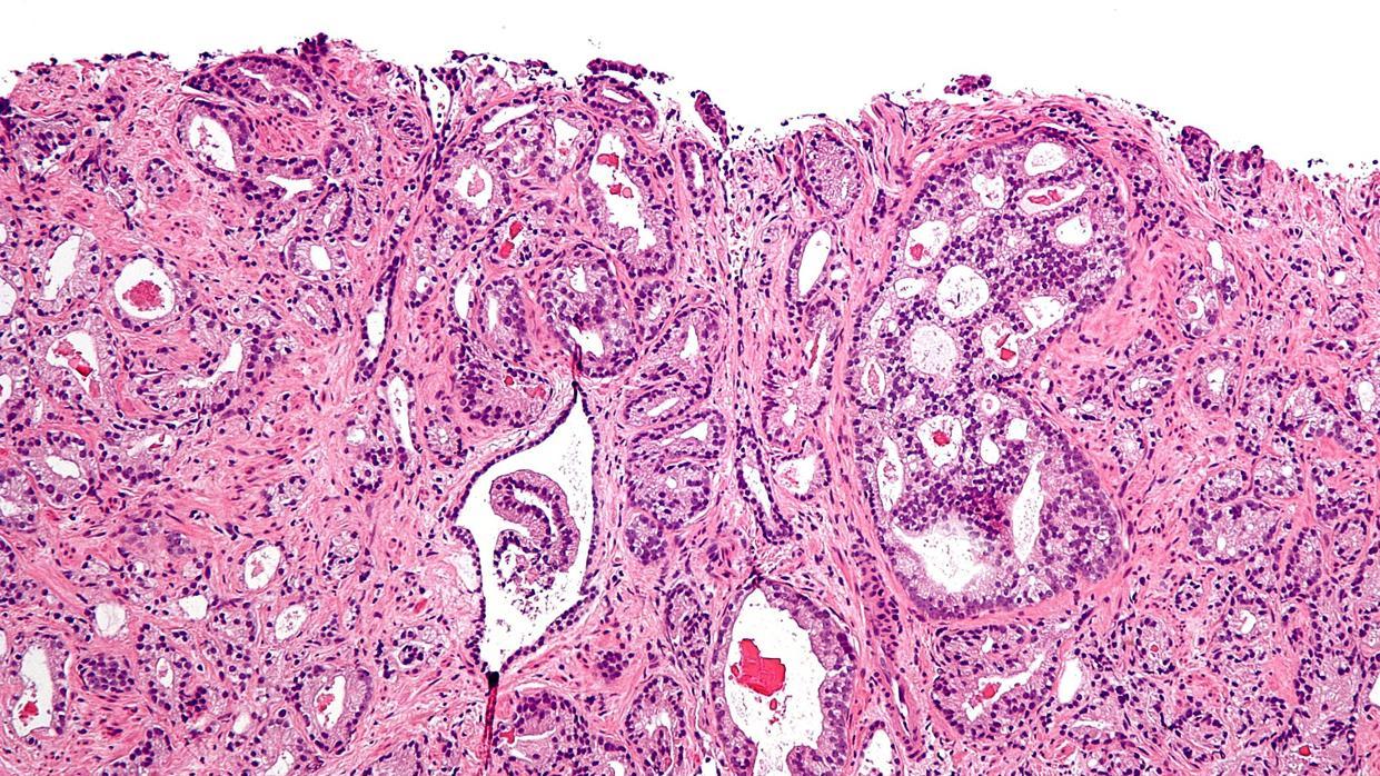 Tendencia del cáncer de próstata a lo largo del tiempo
