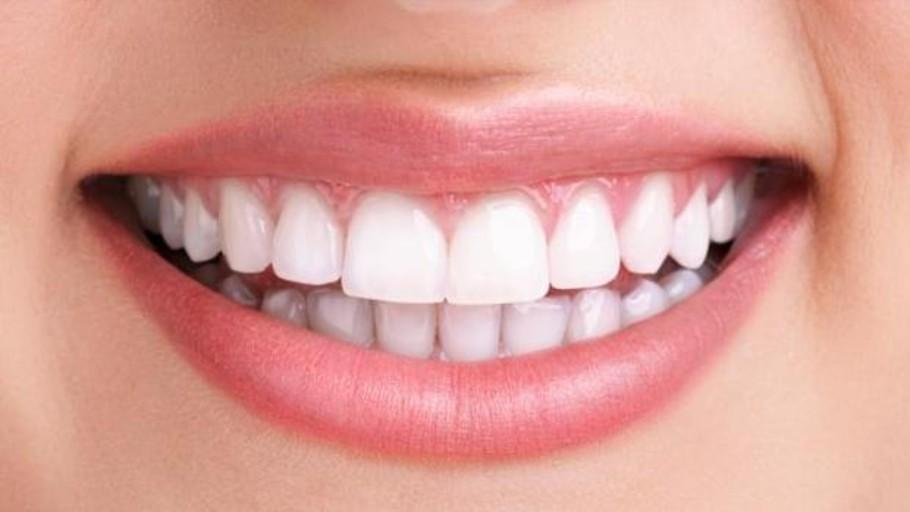 La OCU alerta de los riesgos de blanquear los dientes con carbón activado