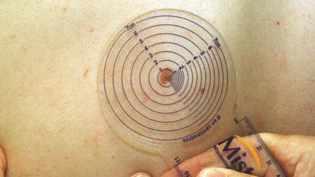 Los melanomas suelen tener unos bordes irregulares y el color se modifica con el tiempo