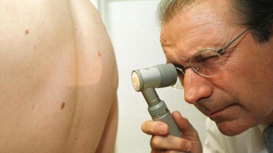 Melanoma: Estas son los señales de alarma del cáncer de piel más peligroso