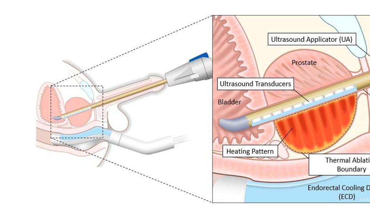 haz de próstata vascular nerviosa