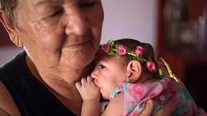 Fotografía del 8 de febrero de 2016, de Ana Beatriz, una niña con microcefalia que celebró 4 meses de vida en el municipio de Lagoa do Carro, Pernambuco (Brasil).