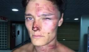 La fotografía de la agresión difundida por el propio turista a medios británicos