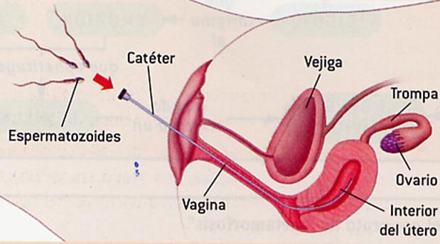 Como se hace una inseminación artificial casera