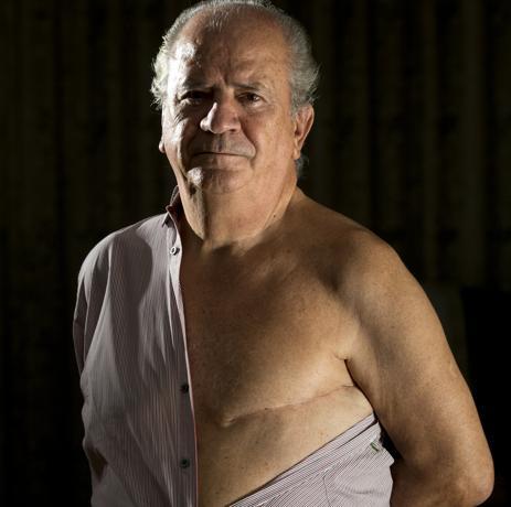 Ernesto Herrero, tenía 61 años cuando un día notó en la ducha cómo su pezón izquierdo se había retraído hacia dentro. E diagnóstico no se hizo esperar: cáncer de mama
