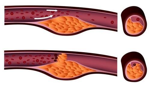 Efecto del colesterol sobre las arterias