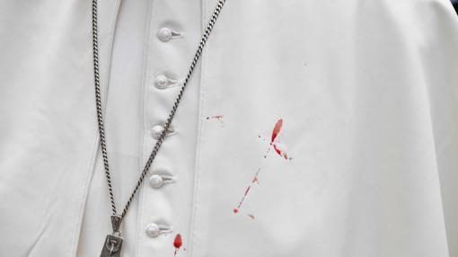 Imagen de la esclavina manchada de sangre por la herida