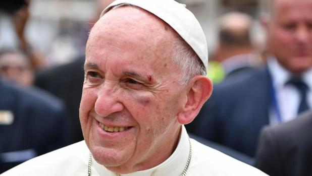 Francisco se golpeó la cara con el cristal del papamóvil al intentar saludar a un niño en Cartagena