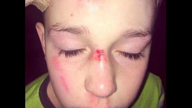 Así quedó la cara de un niño de 11 años autista tras ser acosado en el colegio por sus compañeros