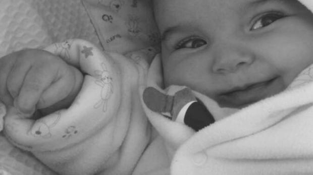 Los primeros síntomas comenzaron dos meses después de su nacimiento