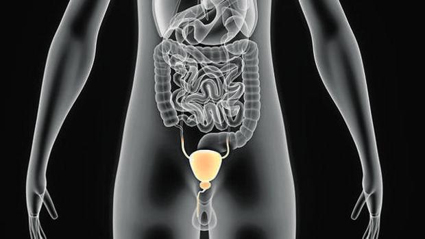 Imagen de la zona afectada por el cáncer de próstata
