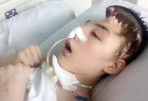 El niño, tras el ataque
