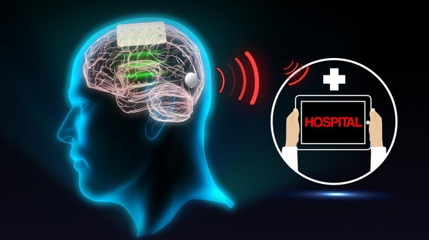 Simulación de cómo sería el implante aplicado a un ser humano