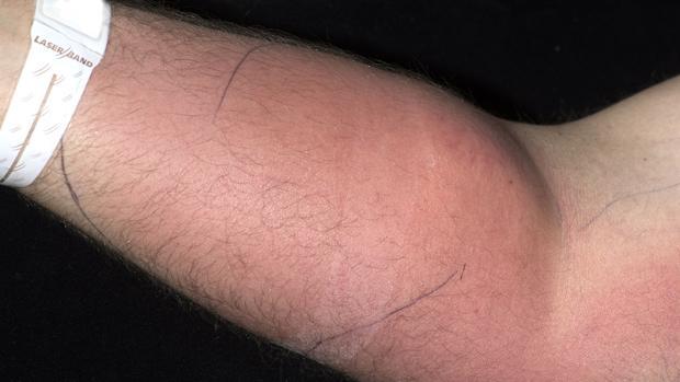 Un hombre que se inyecta semen en el brazo para tratar su dolor de espalda Semen-1-kc0--620x349@abc