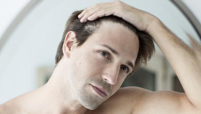 La caída del cabello acarrea problemas de autoestima