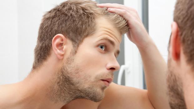 Resultado de imagen de caida de pelo