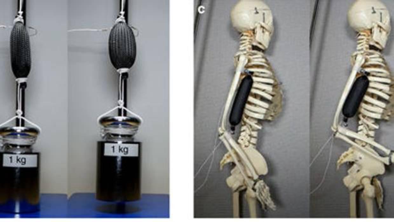 Crear músculo humano para robots: la nueva obsesión